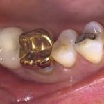 Gold Crown  Restoration