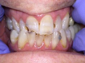 Anterior Upper and Lower Restorations