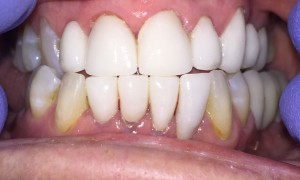 Anterior Crowns Made In Zirconia. Natural Esthetics and Excellent Strength.