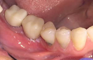 Lower Right Molars Implant Crowns Done With Cerec 3D Same Day Crowns.