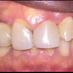 Beginning full mouth reconstruction